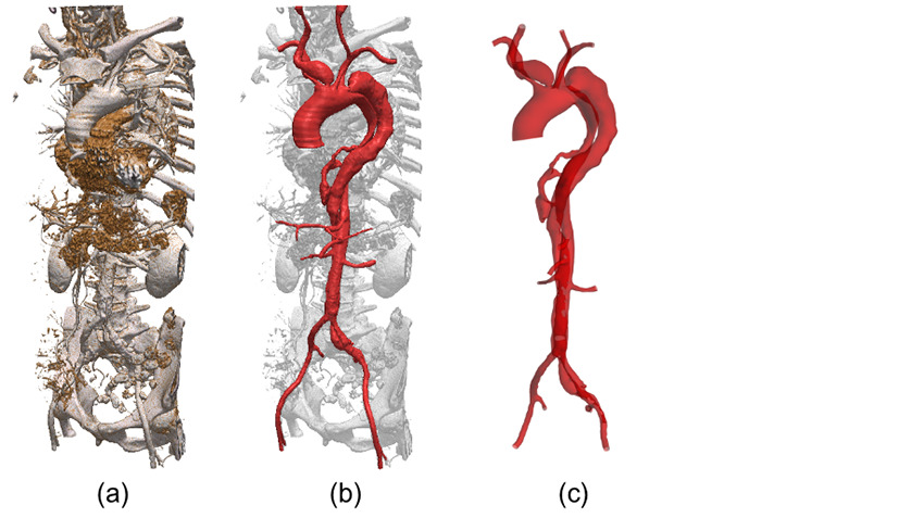 Segmentation of aortic dissection in Simpleware ScanIP