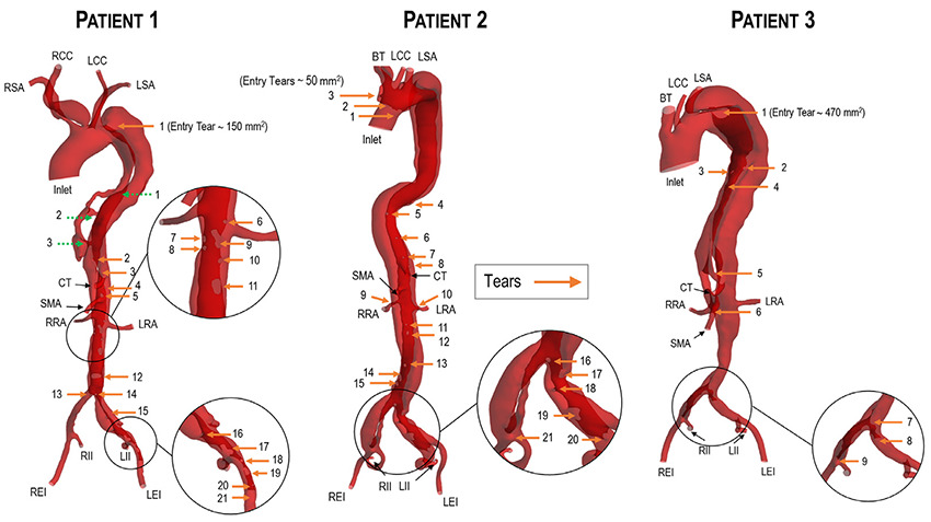 Aortic dissections of 3 different patentients in Simpleware ScanIP