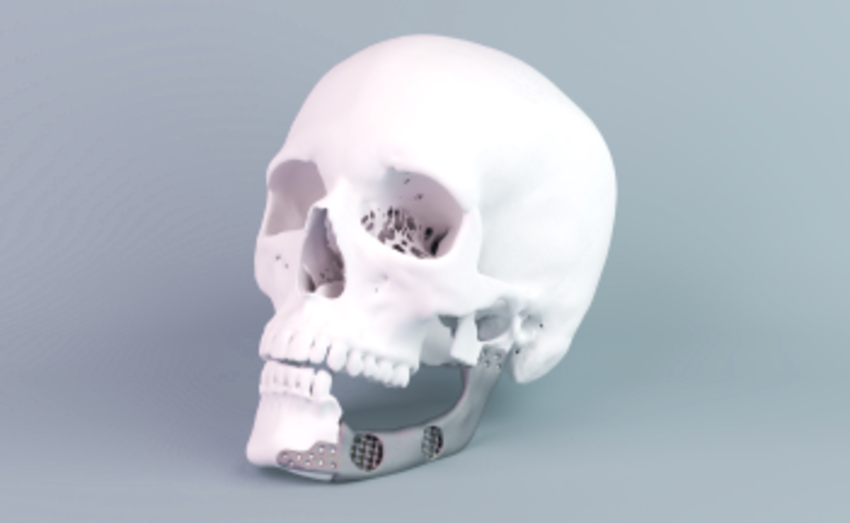 Human skull with 3D printed implant