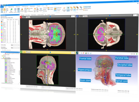Example of 3D segmentation software capabilities for human head models