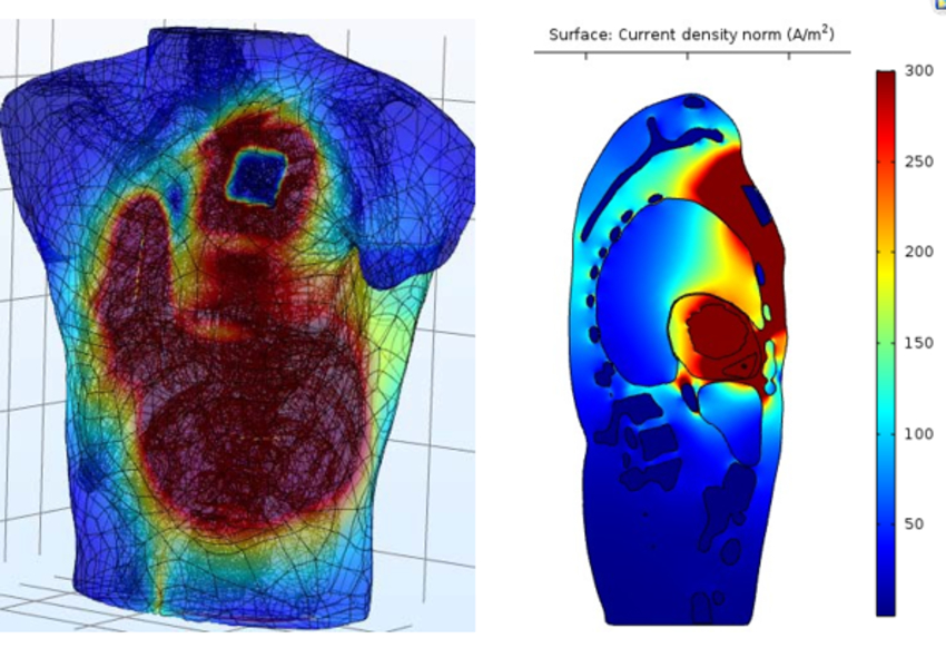Torso Model Generation for Simulating Pacemaker Performance