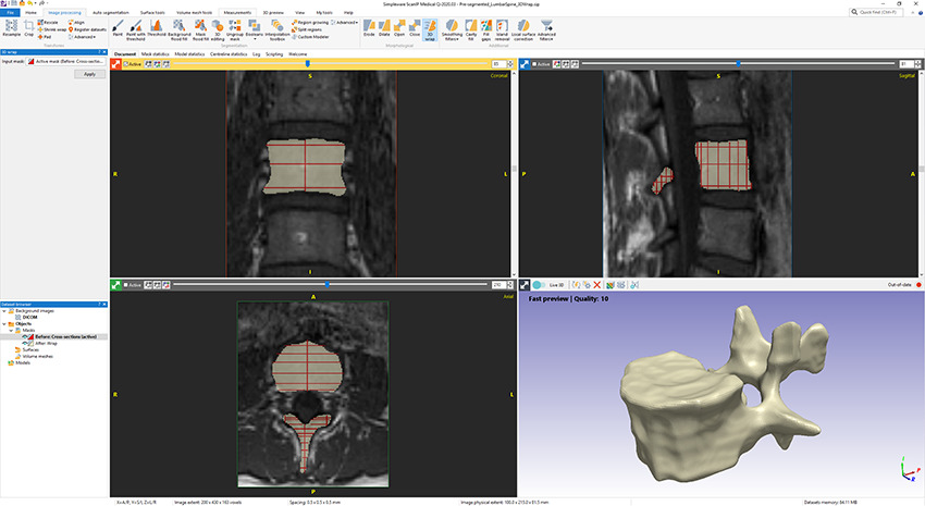 3D Wrap in Simpleware ScanIP allows you to build masks from cross sections