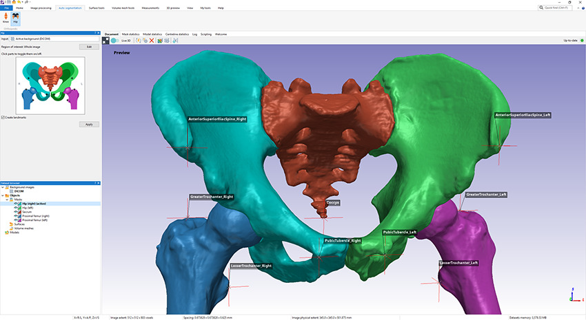 Simpleware AS Ortho hip segmentation tool and output