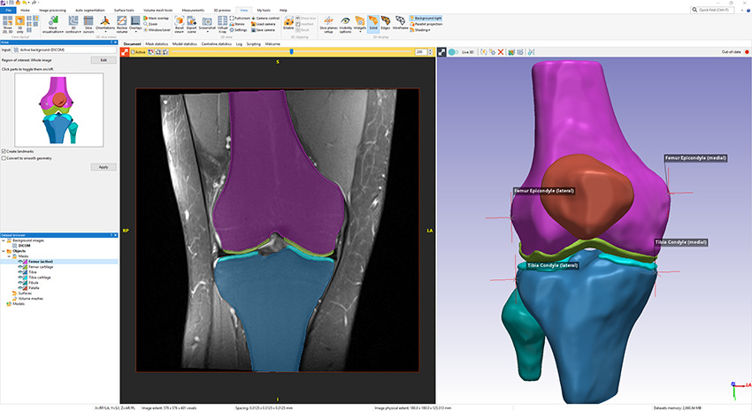 S impleware AS Ortho knee segmentation tool and output