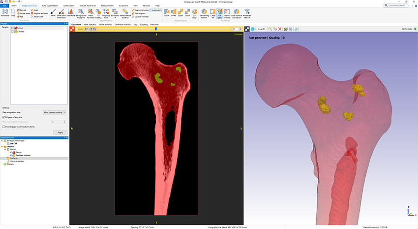 3 D Editing tools Use the Fill Gaps tool in Simpleware ScanIP to close up cavities inside objects
