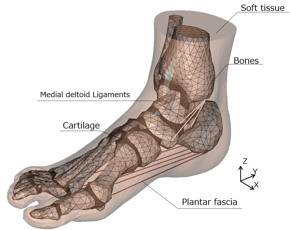 3D numerical foot model