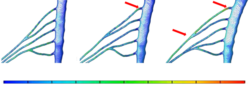 Simulation of lateroflexion of the spine